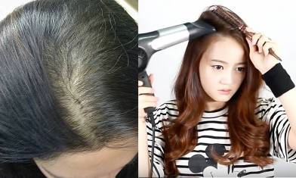 固定分界易脫髮!髮型師教5招換髮線 防頭皮老化