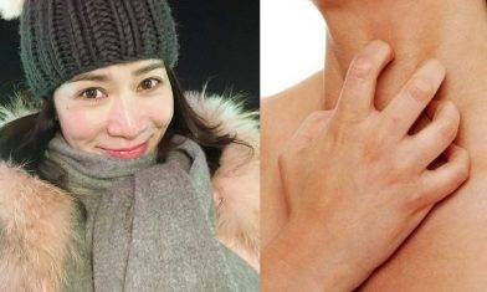頸巾易藏塵蟎 不定期清洗隨時令皮膚過敏