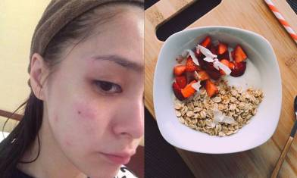 食得多都可能會爆瘡!5樣會引發暗瘡的健康食品