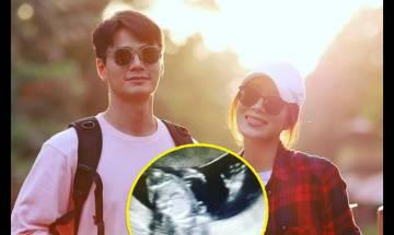 【#頭號粉絲】楊怡宣布懷孕 大曬超聲波相!