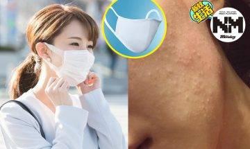 成臉皮膚紅腫、痕癢?戴口罩防敏感方法懶人包!UNIQLO超透氣口罩超有用