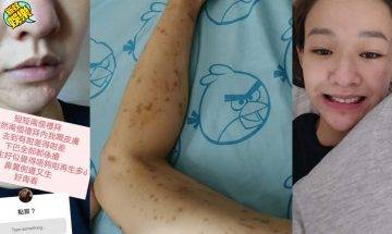Regen貼滿佈斑紋腳、下巴爆瘡、體重跌穿90!自爆:醫生問我係咪High毒?